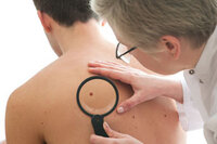 Sunscreen Use in Childhood Prevents Malignant Melanoma in Adulthood