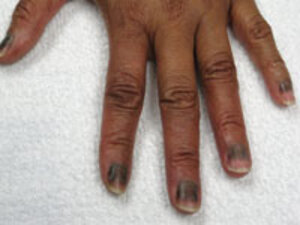 Ingrown nails, nail shedding and dark lines through the nails may occur during cancer treatment.