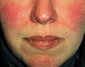The Truth Behind Skin Redness