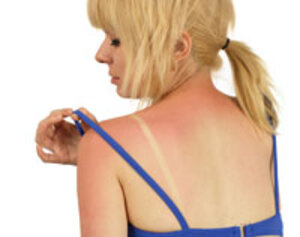Sunburn pain molecule