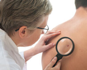 Three-in-one Optical Skin Cancer Probe in Clinical Trials