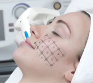 Laser Therapy: Highly Effective for Excessive Scars from Abnormal Wound Healing