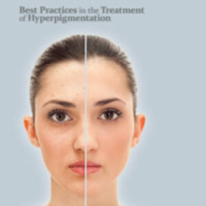 professional skin care client with hyperpigmentation