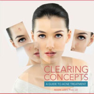 Clearing Concepts: A Guide to Acne Treatments