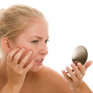 Survey to Identify Research Priorities for Acne