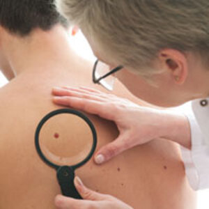 AADs New PSA Urges Men Over 50 to Check For Skin Cancer