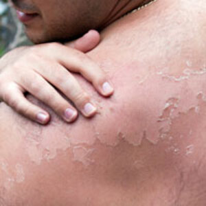Minimizing Skin Cancer Risk for Outdoor Workers