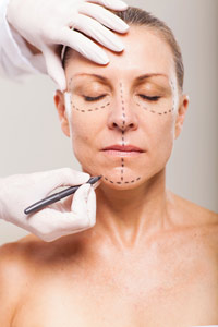 """Do I Need a Face Lift?"" Guiding Clients Through the Next Steps"