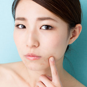 25 Facts About Adult Acne