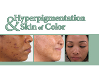 Hyperpigmentation and Skin of Color