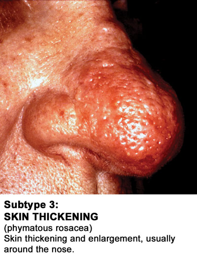 Rosacea Subtype 3