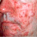 rosacea subtype 2