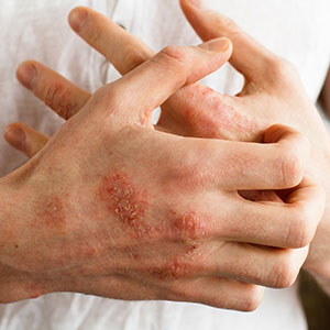 Study Targets Eczema Susceptibility at Its Source