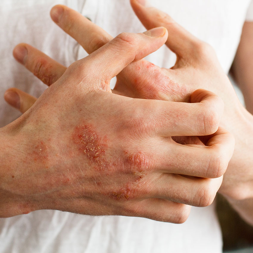 Eczema-causing protein researched