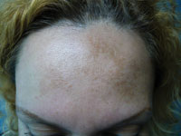 Because melasma is a chronic condition with high rates of recurrence, clients who are predisposed to developing melasma may find current treatment modalities needlessly frustrating and difficult.
