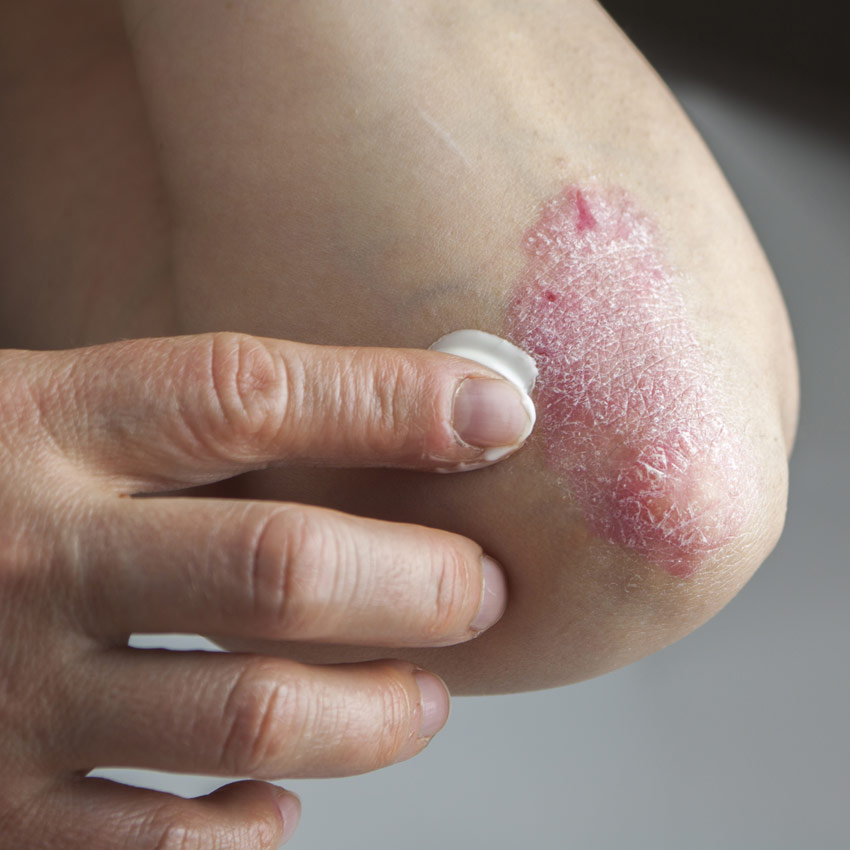Putting cream on an elbow with psoriasis
