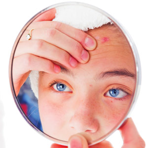 Woman with acne looking into a mirror.