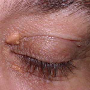 Don't Just Stick a Needle In It: Eye Lesions
