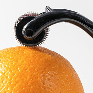 Microneedling device on orange