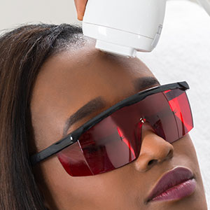 Woman of color having laser skin treatment