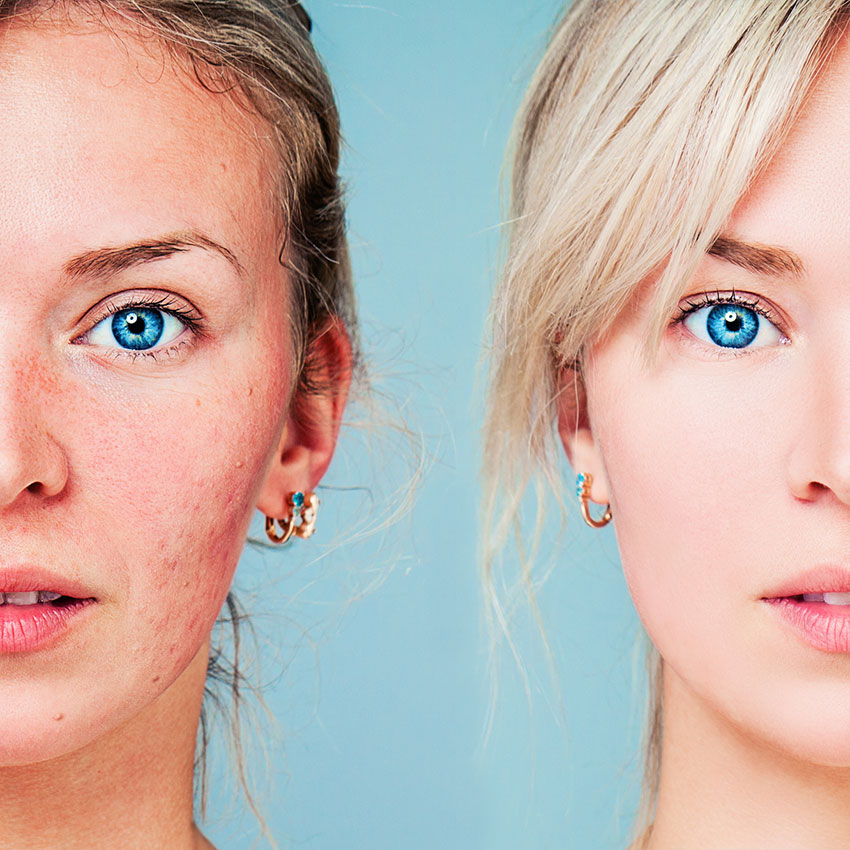 Healthy and unhealthy rosacea skin comparison