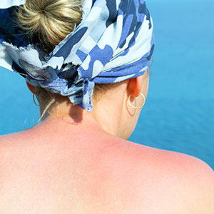 Sunburnt woman wearing bandana