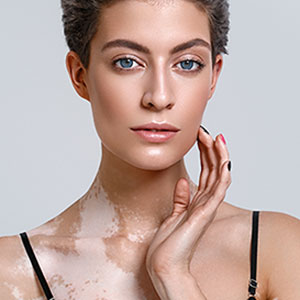Use PRP, Lasers to Fight Against Vitiligo