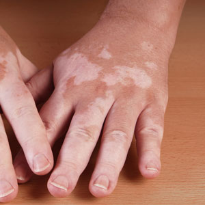 Hands with vitiligo
