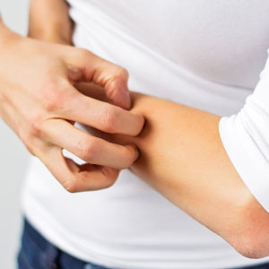 FDA Approves Dupilumab (Dupixent) for Eczema
