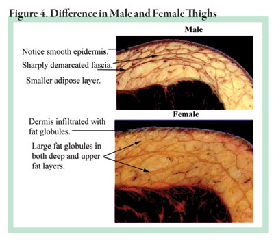 Pugliese Figure 4: Thighs
