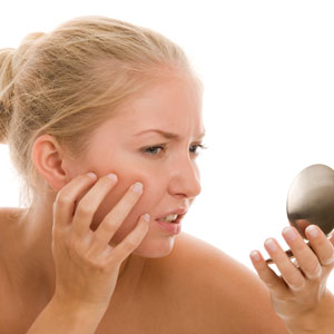 Hormonally-driven Hyperpigmentation and Acne