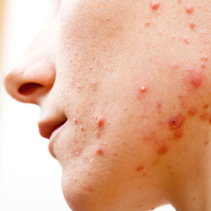 AAD Fights Acne With Combo Treatments
