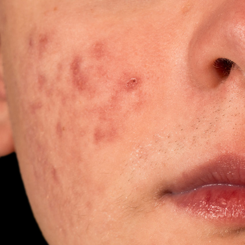 acne scar cheek