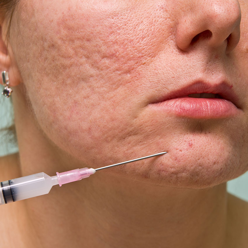 FDA Approves Filler for Acne Scar Treatment