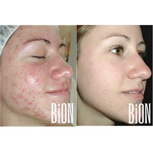 Addressing Acne at Face & Body Northern California