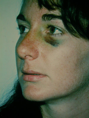 woman with bruise