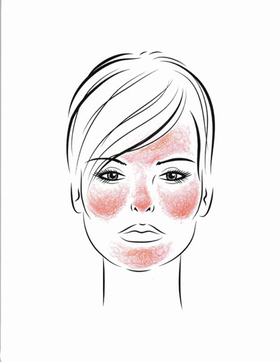 Facial distribution of rosacea