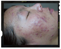 inflammed acne