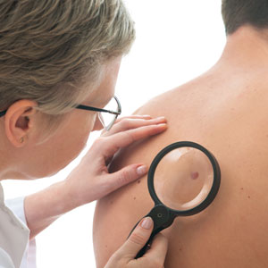 Emerging Treatments Give Hope for Treating Advanced Melanoma