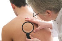 Men Living Alone Have Higher Risk of Death From Skin Cancer