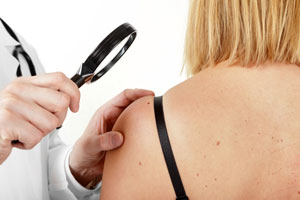 Multiple Sunburns Before Age 20 Increases Melanoma Risk Substantially