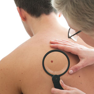 Melanoma breakthrough