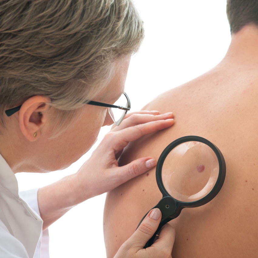AAD Statement on Costs of Skin Cancer Treatment