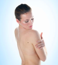 Study Finds Radiation As Best Treatment for Rare Skin Cancer