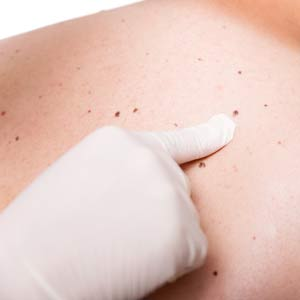 Your Toolkit to Spotting Skin Cancer (And Saving Lives)