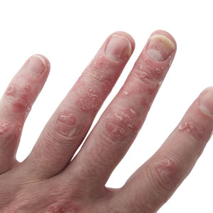 4 Facts About Psoriatic Arthritis