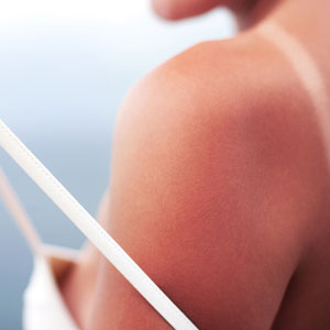 science behind sunburn