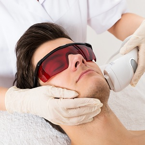 A laser treatment