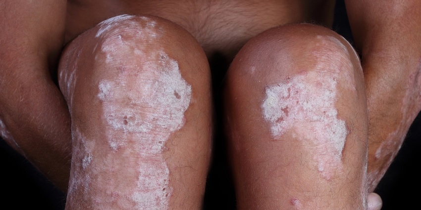 Someone suffering with psoriasis