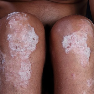 Someone with psoriasis
